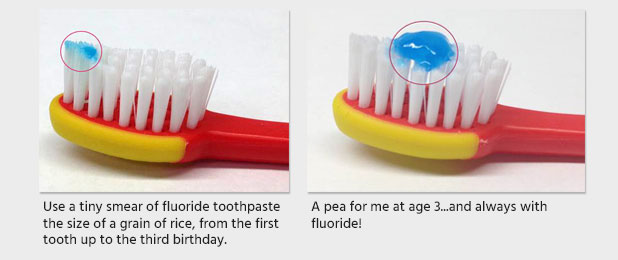 Thumbs-up for Fluoride Toothpaste From American Dental